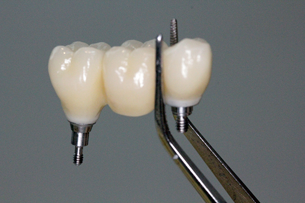implantologia_600x400