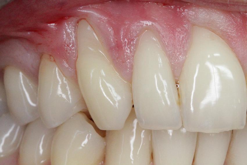 periodontologia_1